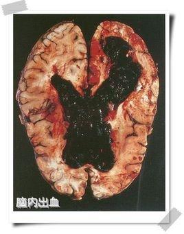建三维立体的脑部结构图
