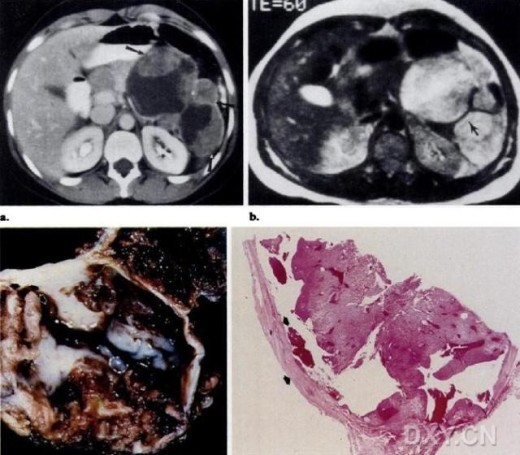 肺脂肪变性手绘图