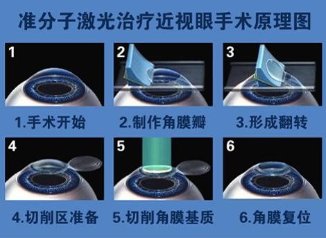 广州做近视眼手术_近视眼手术_360百科