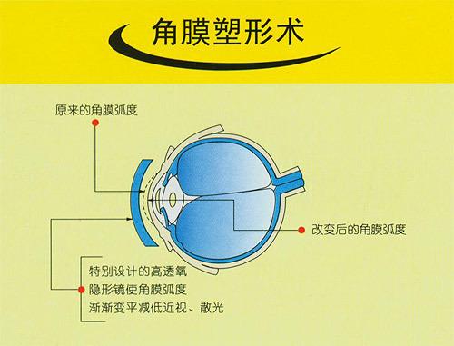 近视眼手术会失明吗_急!关于近视眼矫正手术的问题。-关于近视眼手术问题
